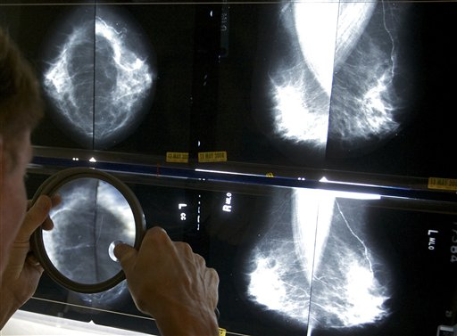 Mammograms_247258