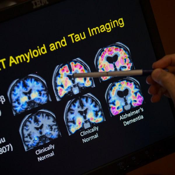 Alzheimers_Disease_37927-159532.jpg88568285